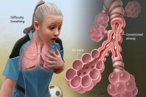 Asthma und Allergie