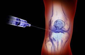 Hyaluronsäure bei Arthrose