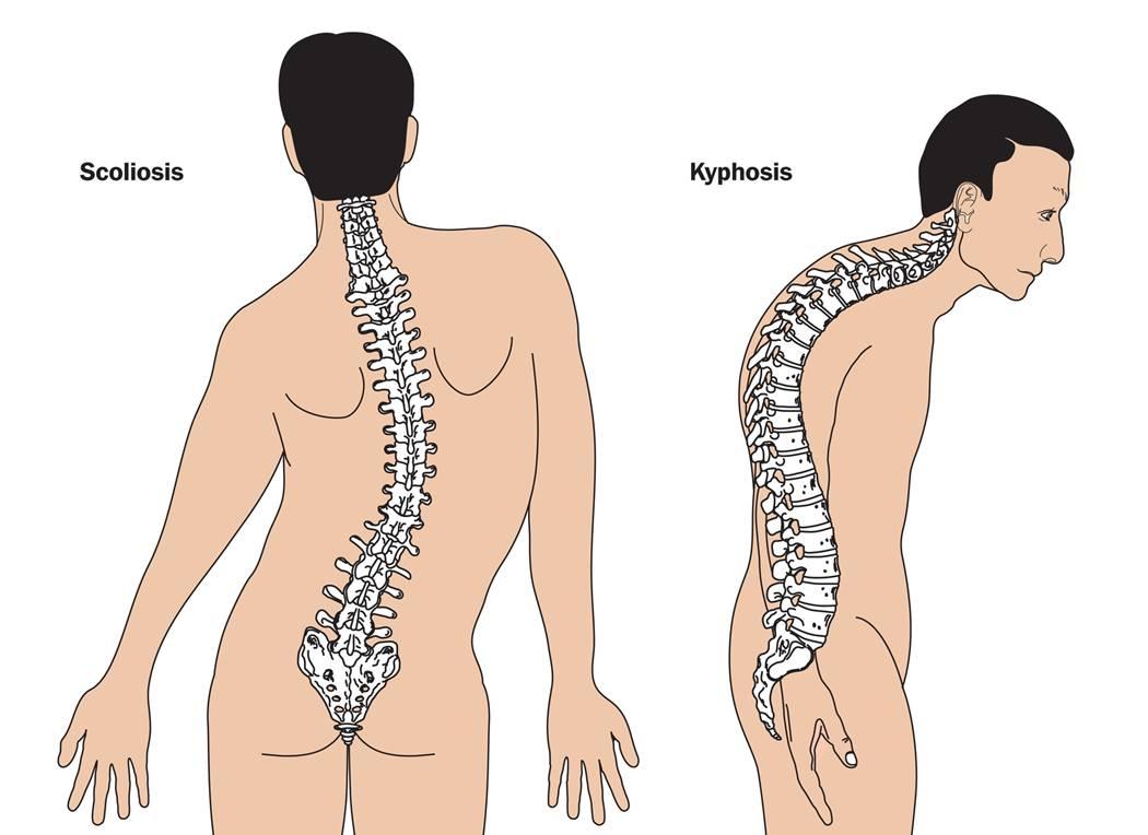 Die neuromuskuläre Skoliose - Behandlung der muskulär bedingten ...