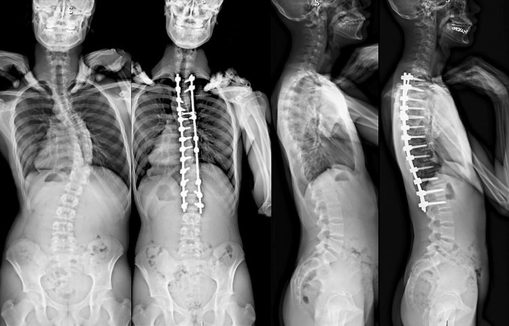 skoliose operation risiko
