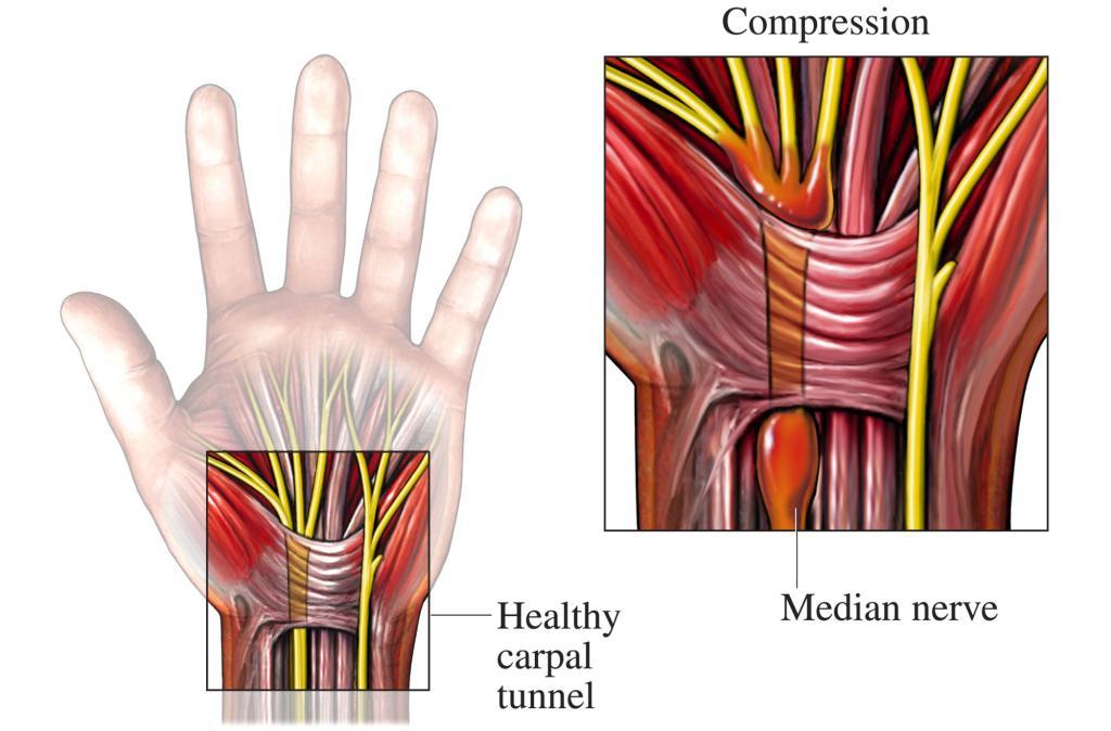 Das Karpaltunnelsyndrom – wenn die Hand nachts schmerzt - Wie ...