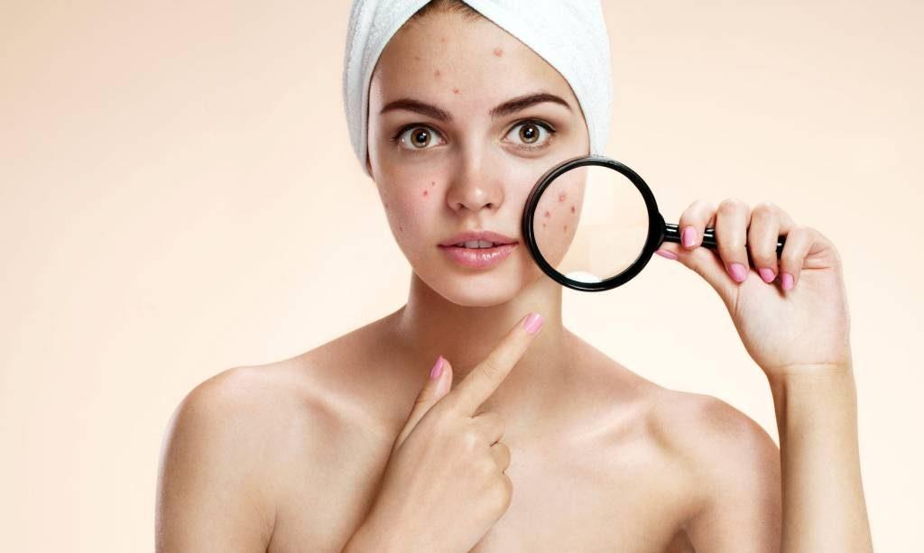Was Hilft Gegen Unreine Haut Pickel Mitesser Und Akne Wie