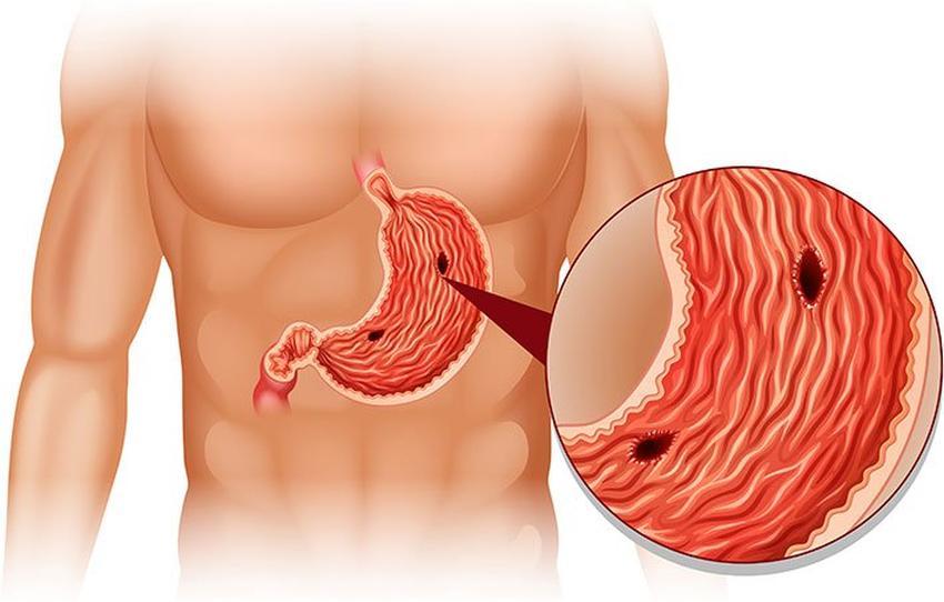 Gastritis - Entzündung der Magenschleimhaut - Wie-funktioniert.com