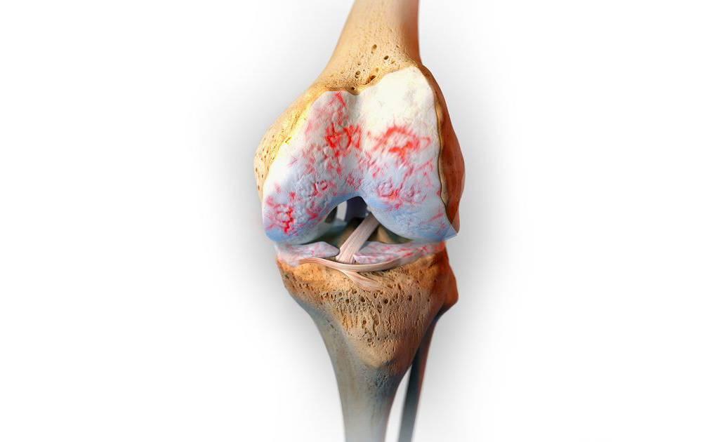 Behandlung der Knie-Arthrose ohne Medikamente - Wie-funktioniert.com