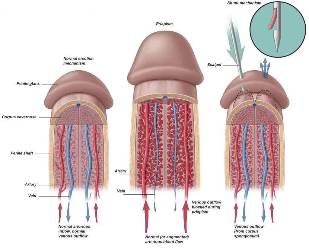Mann dauererektion adelajac: Querschnittslähmung