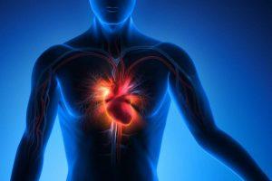 Herzinfarkt