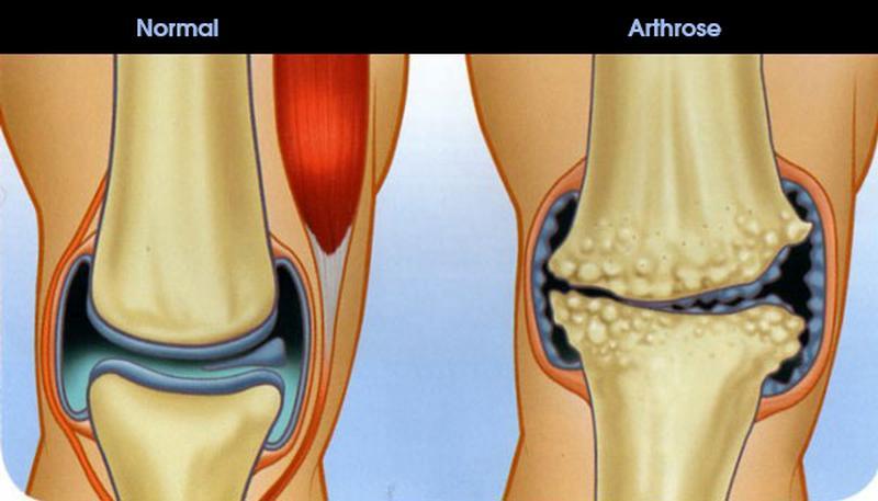 Bildergebnis für Arthrose